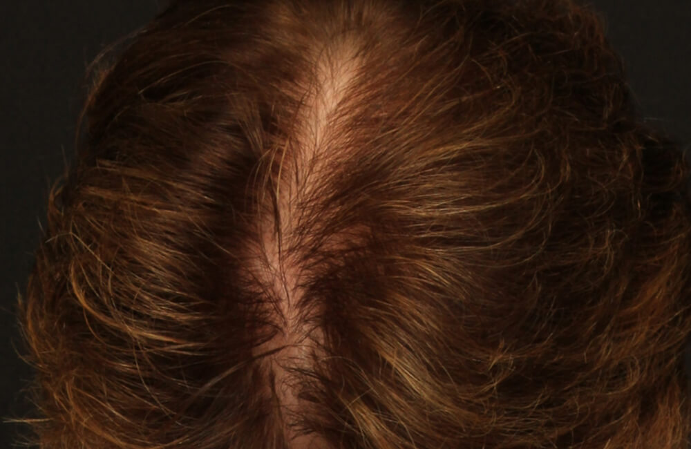 Female Hair Restoration - After