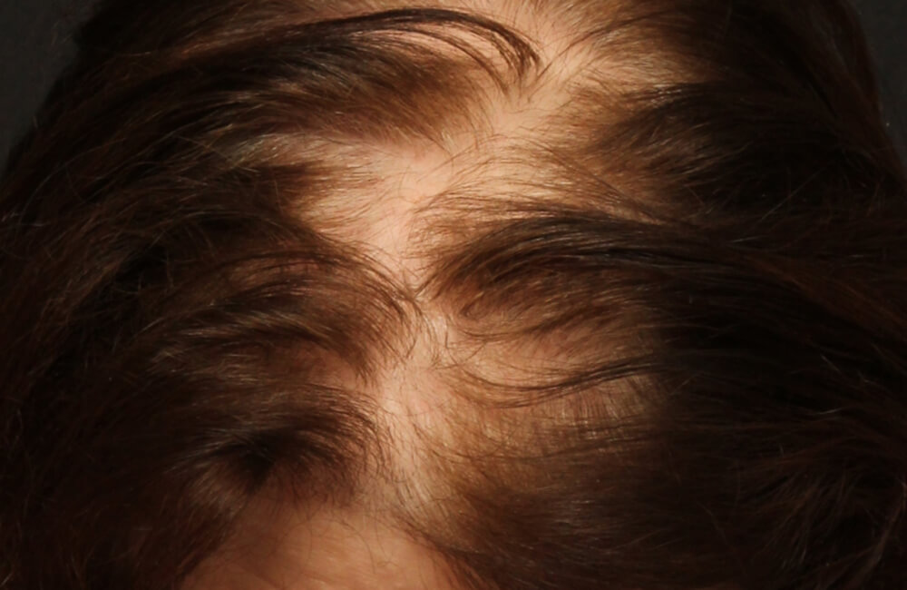 Female Hair Restoration - Before
